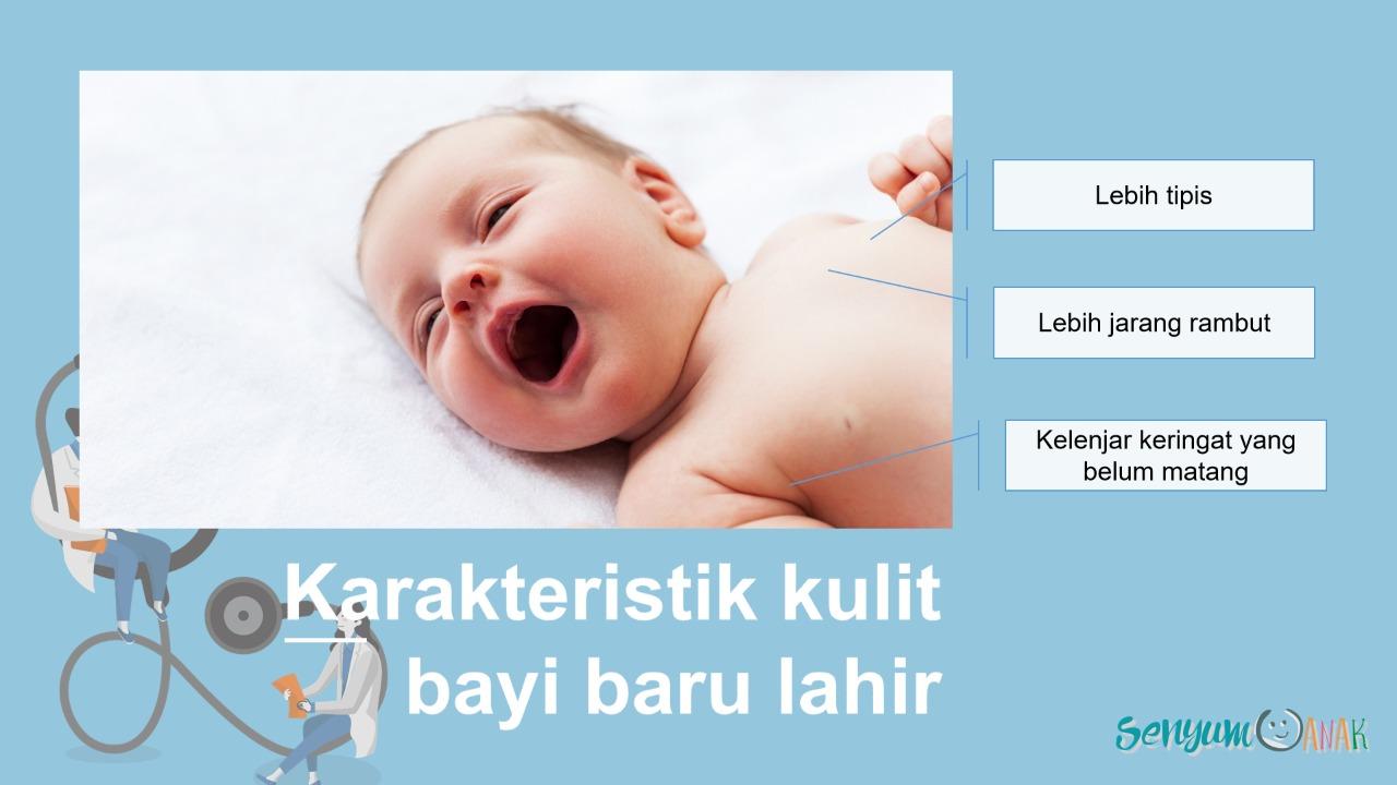 bayi jerawatan